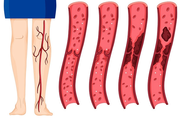 What is a Blood Clot and how to prevent it